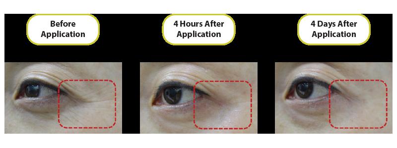 before-after-endoskin-1