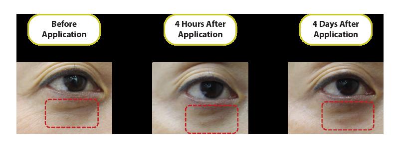 before-after-endoskin-2