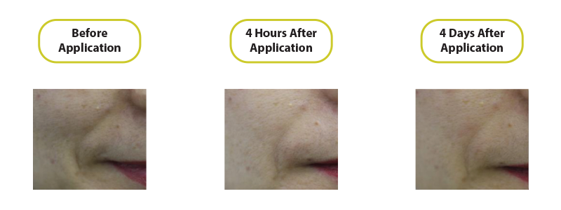 before-after-endoskin-3
